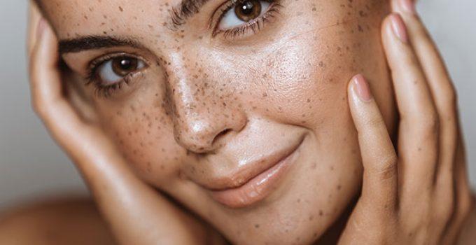 attenuer les taches pigmentaires
